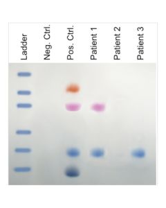 Edvotek AIDS Kit III: Simulation of HIV Detection by Protein Electrophoresis [80181]